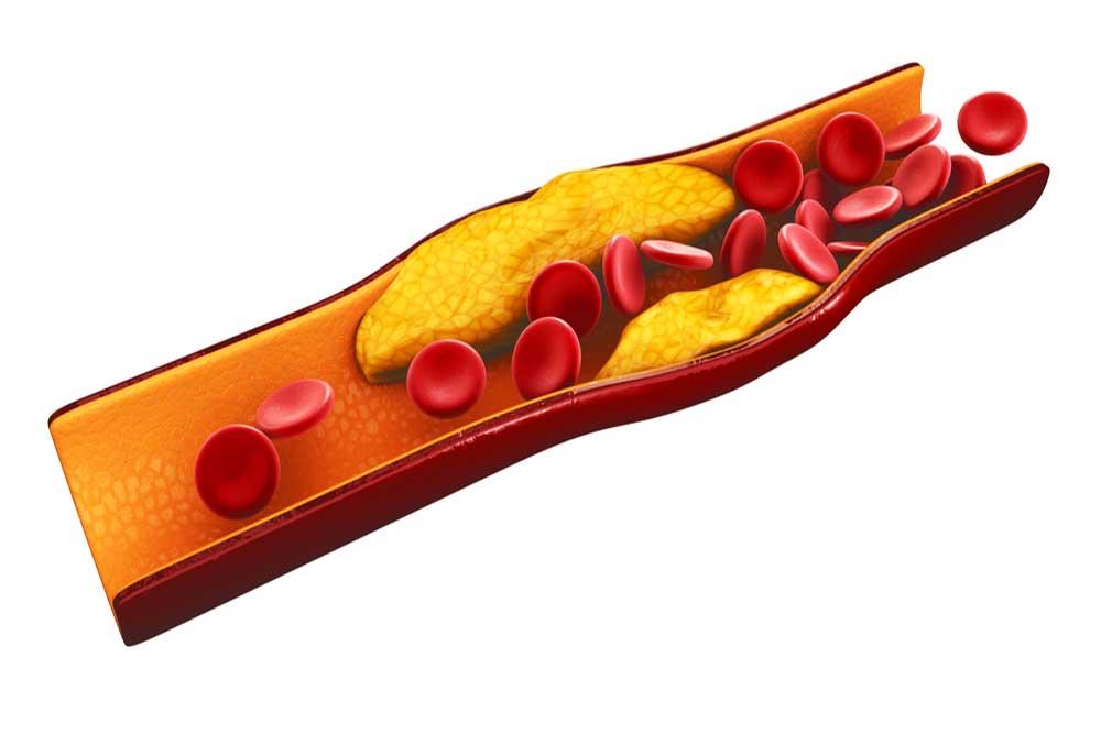 Cholesterol-5.jpg