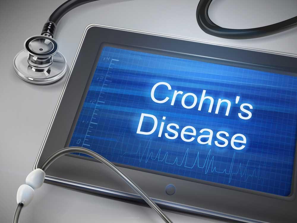 Crohns-Disease-3.jpg