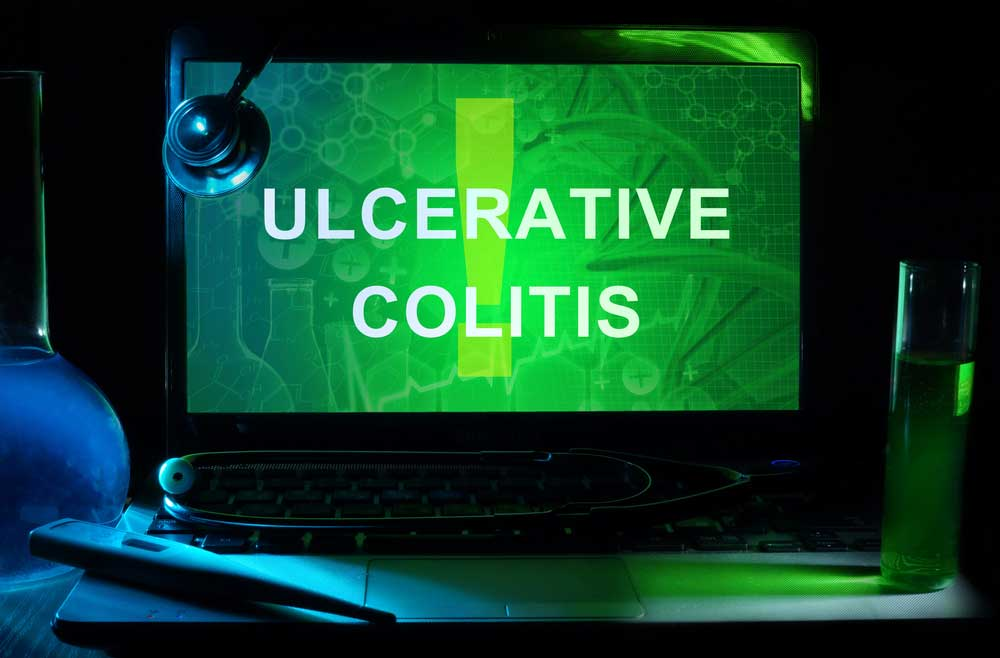 Ulcerative Colitis Clinical Research