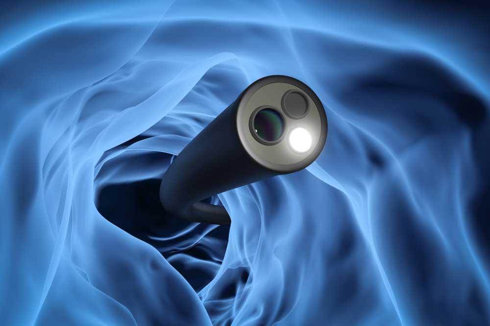 Colonoscopy Camera