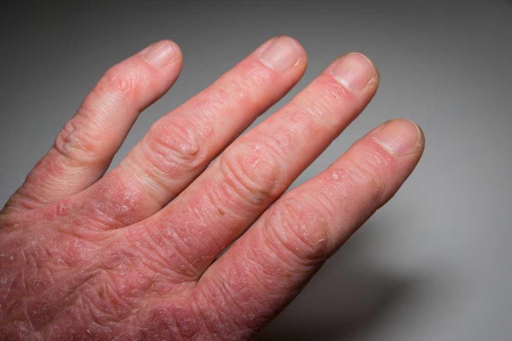 Psoriatic Arthritis Research